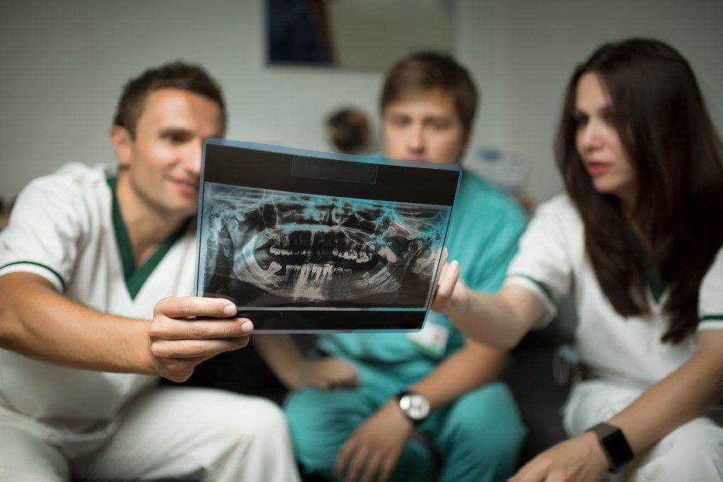 checking an x-ray of teeth
